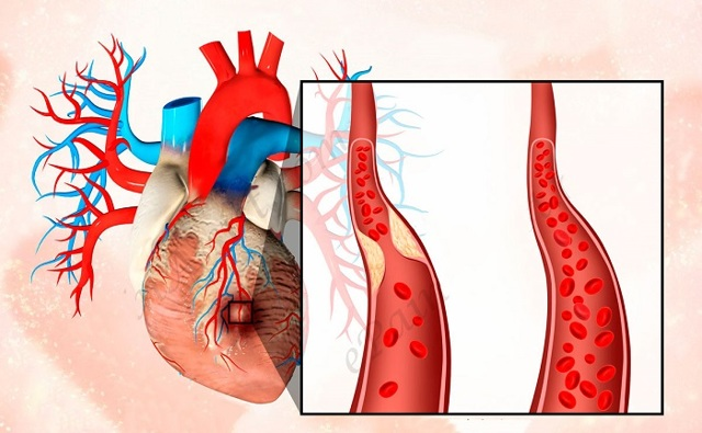 Как вовремя заметить первые признаки инфаркта миокарда