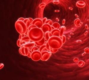 Причины, симптомы и лечение гипервискозного синдрома