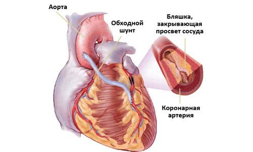 Кардиалгия — симптом, а не болезнь