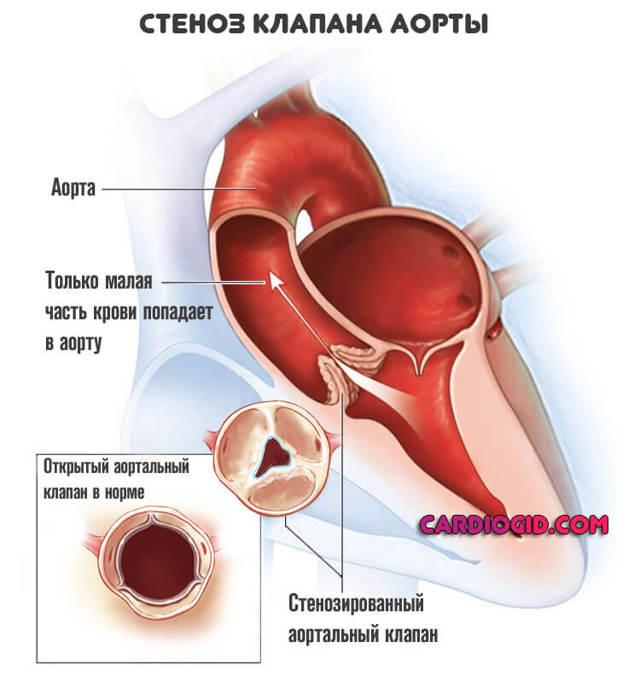 Причины, клиника и лечение стеноза аорты