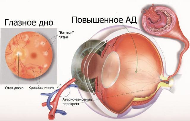 Симптомы, методы лечения и осложнения гипертонической ангиопатии
