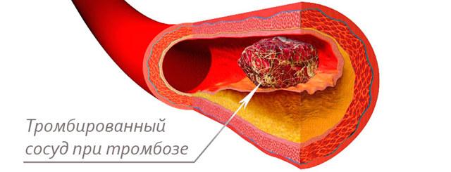 Чем опасен тромбоз геморроидальных узлов