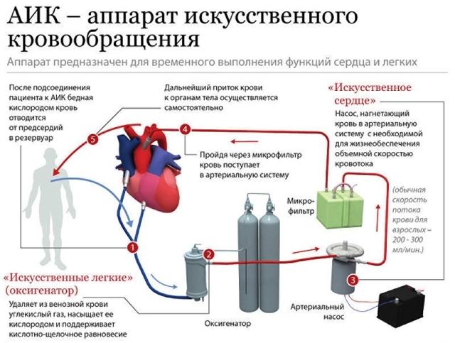 Противопоказания и последствия трансплантации сердца