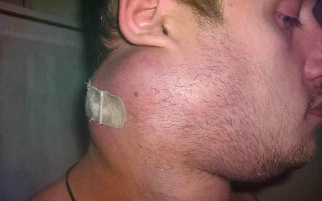 Стадии, лечение и прогноз при лимфосаркоме