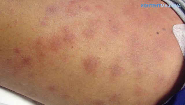 Лечение острого лейкоза и прогнозы врачей