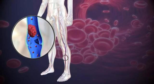 Воспаление вены на ноге симптомы