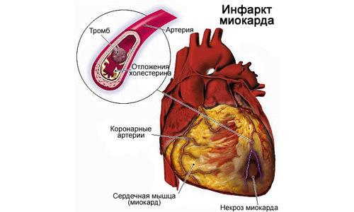 Протезирования аортального клапана реабилитация после