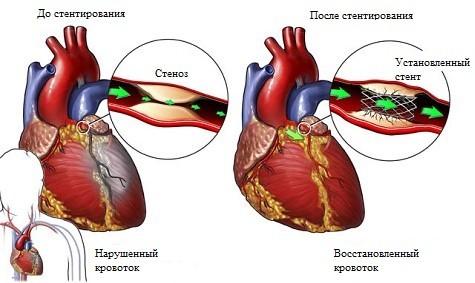 Ход операции и осложнения после стентирования коронарных артерий