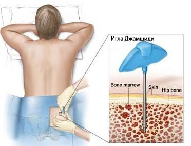 Хронический миелоидный лейкоз - клиника, диагностика, лечение
