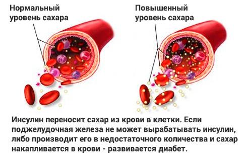 Нормальные показатели уровня сахара и холестерина в крови
