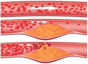 Как правильно применять липу для снижения холестерина?