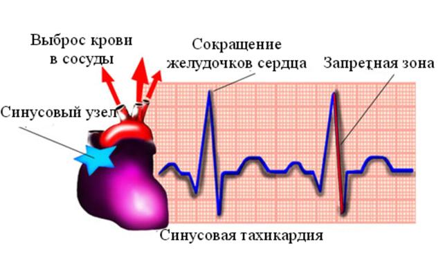 Причины, виды и лечение синусовой тахикардии