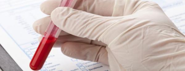 Причины отклонения от нормы уровня АЛТ в анализе крови