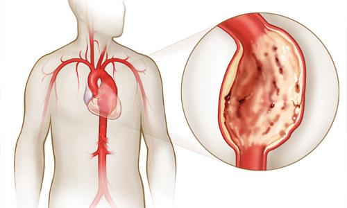 Возможности, ход исследования и результаты ЭФИ сердечной мышцы