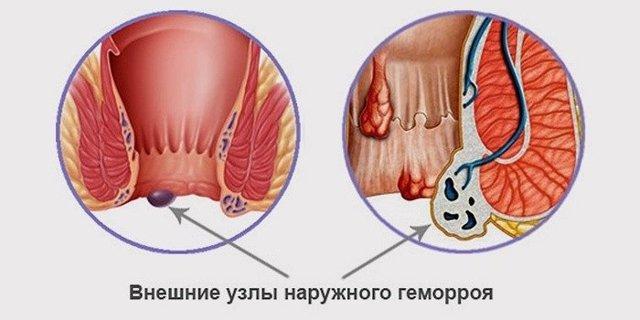 Лечение геморроя массажем