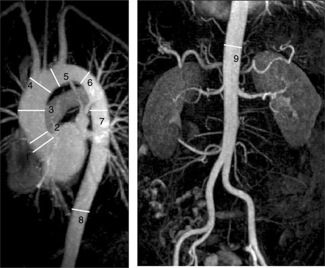 Склероз аорты и икс что это