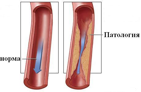 Диагностика, лечение и методы профилактики стеноза сосудов