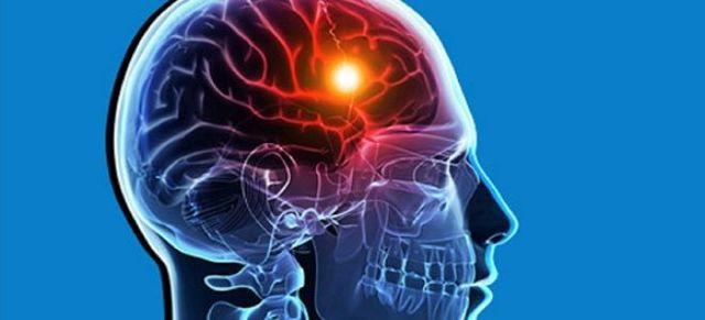 Что делать после инсульта больному и его близким?
