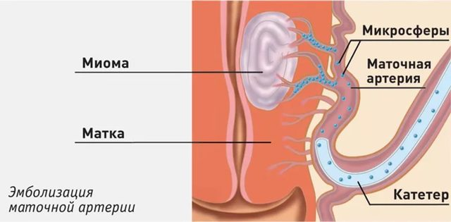 Как проводится и кому противопоказана эмболизация миомы матки?
