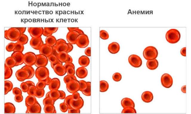 Анемия 2 степени - что это такое, признаки анемии второй степени