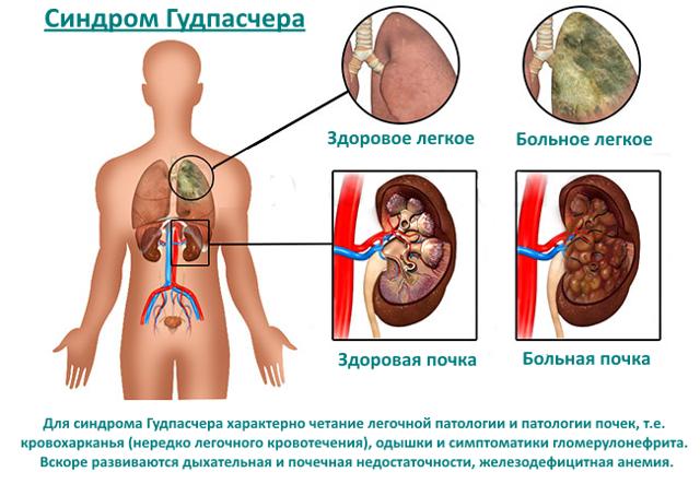 Клиника, лечение и прогноз при синдроме Гудпасчера