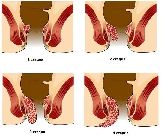 Лечение геморроя при беременности в домашних условиях