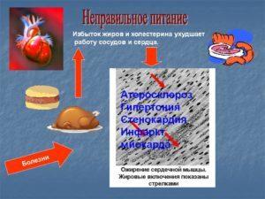 Принципы лечебного питания после инфаркта