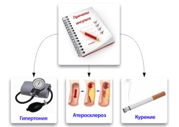 Признаки геморрагического инсульта: прогнозы, методы лечения
