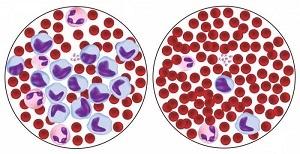 Разновидности лимфоцитов и причины изменения их уровня в крови