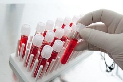 Что показывает уровень mchc в крови и почему он изменяется?