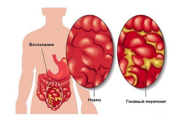 Клиника, лечение и прогноз при синдроме Бадда-Киари