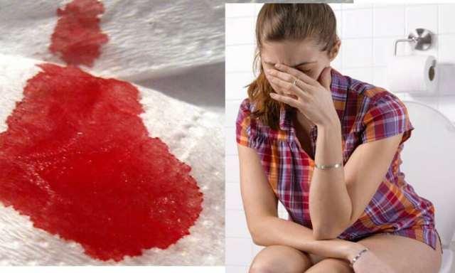 Как лечить геморрой чесноком в домашних условиях?