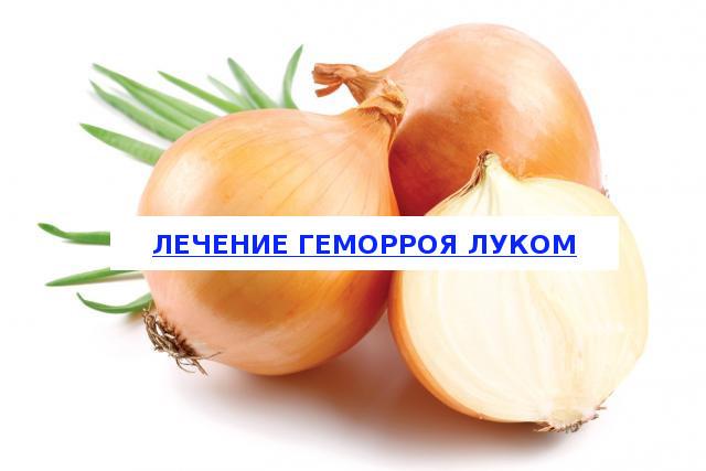 Лечение геморроя луком