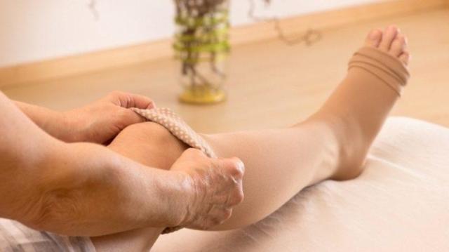Показания к проведению и последствия склерозирования вен на ногах