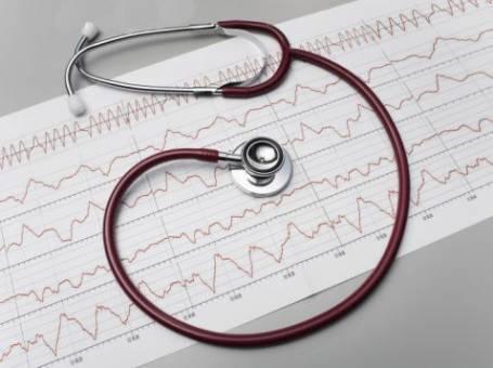 Синусовая тахикардия при беременности ⋆ Лечение Сердца