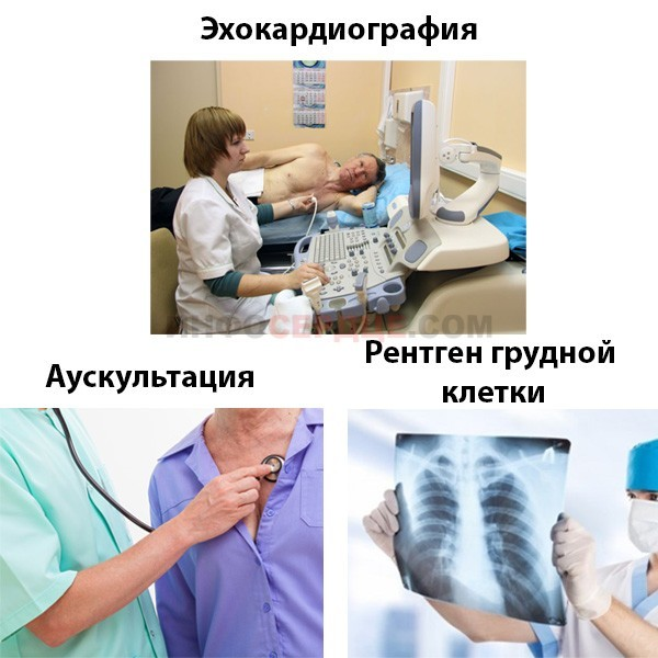Диагностика, степени и лечение митральной регургитации