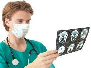 Лечение и профилактика стеноза сосудов головного мозга