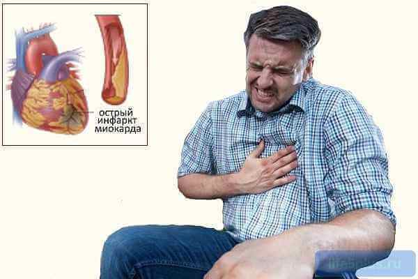 Краткий обзор основных причин инфаркта миокарда