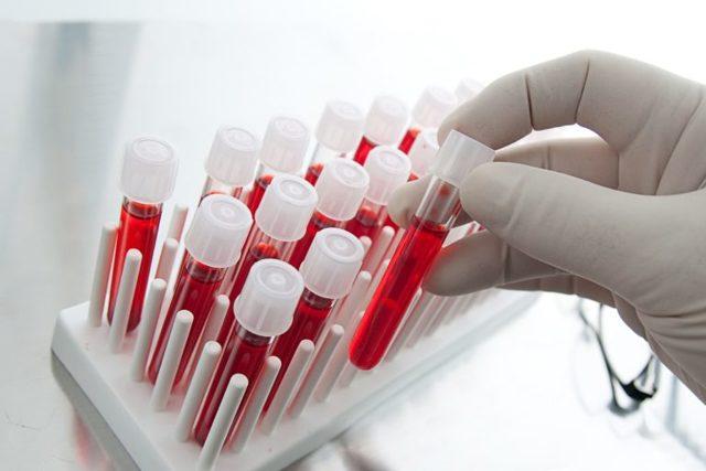 Правила подготовки, проведения и расшифровки биохимии крови