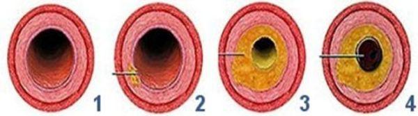 Симптомы, причины, лечение атеросклеротической болезни сердца
