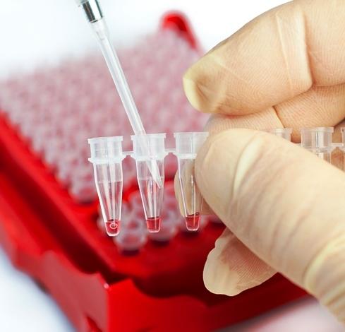 Значения нормальных показателей клинического анализа крови