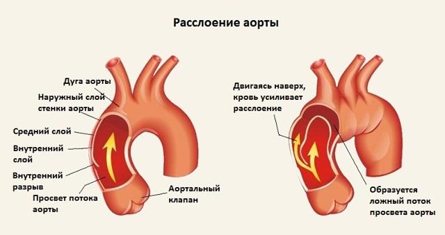 Почему иногда колит в сердце и что в этой ситуации необходимо делать?