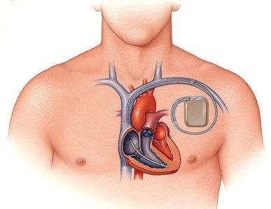 Можно ли с кардиостимулятором заниматься спортом?