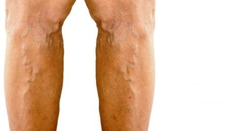 Каковы признаки варикоза вен?