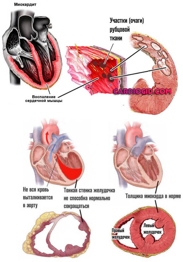 Особенности протекания эссенциальной гипертензии