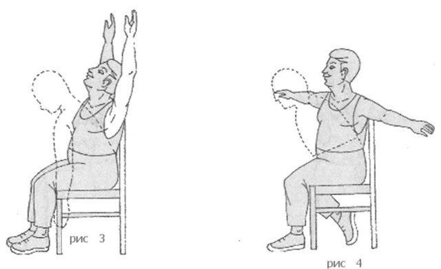 Установление стента сосудов сердца и период реабилитации