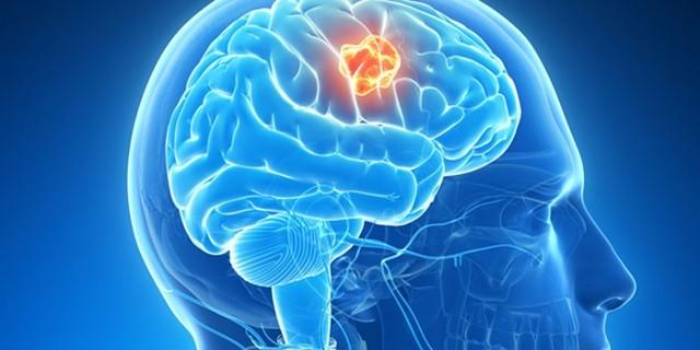 Разновидности и причины развития патологий головного мозга