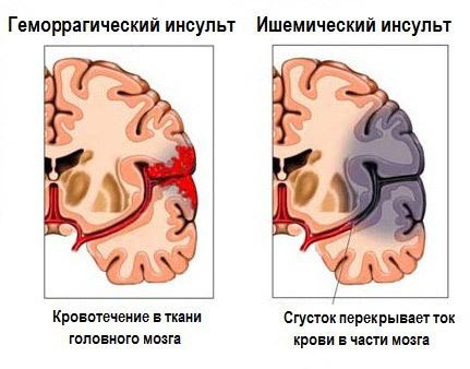 Что такое инсульт, причины, факторы риска, механизмы развития