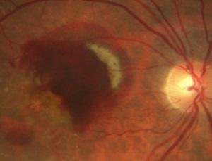 Причины и необходимые действия при кровоизлиянии в глаз