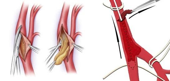 Тромб в легочной артерии лечение